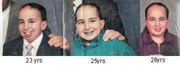 Jeremy before and after surgery in the 90's 2